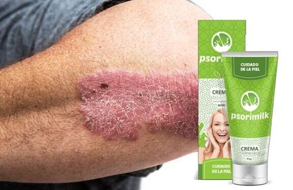 Psorimilk, problema de la piel