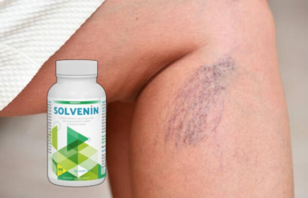 solvenin capsulas, venas de variocosa