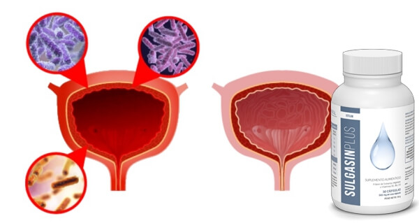 Cistitis , sulgasin plus capsulas