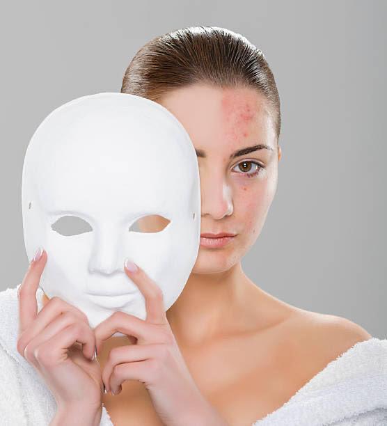 piel problemática, chica. Máscara