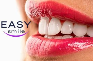 Easy Smile Veneers: encontrar una sonrisa perfecta en un solo clic!