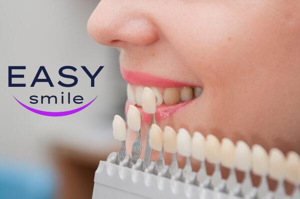 dientes blancos sonrisa carillas