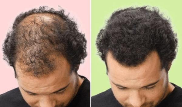 efectos de la máscara de crecimiento del cabello