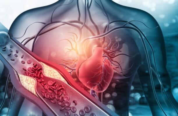 Vivir con hipertensión