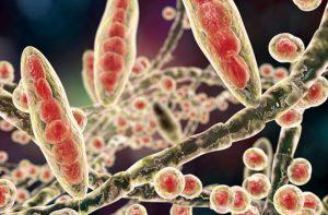 10 alimentos que detienen la infección por hongos