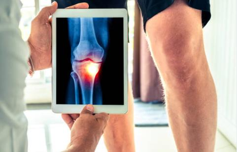 combatir la osteoartritis